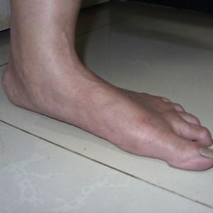 Adult_Flatfoot
