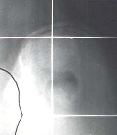 Fig. 39.- Test de RISSER. El tamaño y desarrollo del núcleo apofisario de los iliacos indica el grado  de maduración vertebral. En este caso es +++
