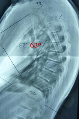 Fig. 40.- Listeles vertebrales. En la región dorsal media y baja corresponde al estadio II. La lumbar  al 0 y la dorsal alta al I. Existe acuñamiento anterior en D7 y D8.