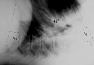 """Fig. 42.- Rx Lateral  del raquis dorsal en proyección """"Stagnara"""" que muestra una hipercifosis dorsal  estructurada ya que sólo corrige a 42º en esta postura de máxima corrección pasiva."""