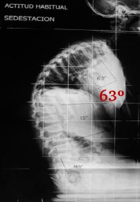Fig. 43a.- Rx L del raquis en Sedentación Asténica (postura sentada relajada) en un niño de 7 años.  Se  aprecia  una  hipercifosis  dorsal  de  grado  moderado  (normal  hasta  40º),  con  una  curva  lumbar   normal (hasta 15º Cobb).