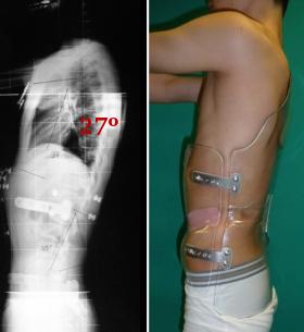 Fig. 69.- Radiografía Lateral de un púber de 15 años con buena reducción del grado de cifosis dorsal  (en su actitud 60º y con el corsé baja a 27º Cobb).