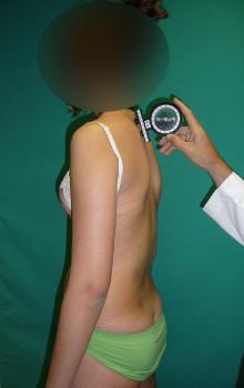 Fig.20a. Medición del grado de cifosis dorsal con inclinómetro. Se coloca a 0º al inicio de la curva dorsal.