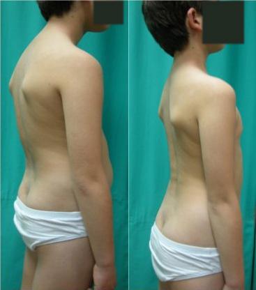 Fig. 2.- Morfotipo cifótico en un niño de 10 años. La curva dorsal está incrementada (tiene 52º), siendo la curva lumbar normal. A la derecha, se normaliza al realizar la postura en autocorrección.