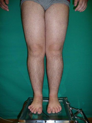 Figura MI 4c.- Genu Valgo 6 cm. tras 6 meses con ortesis. Aún corregirá más.