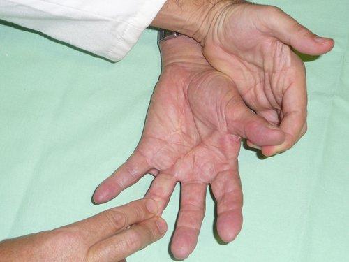 Figura 1.- Paciente de 74 años con afectación de la comisura del 1º (doble banda) que ocasiona una limitación de la separación del primer dedo. Obsérvese como tiene cicatrices de cirugías previas por Dupuytren en otros dedos realizadas años antes (JMS).