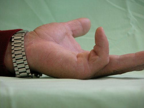 Figura 3.- Paciente de 67 años con marcada afectación del 5º dedo. Obsérvese el notable cordón fibroso y la limitación de la interfalángica proximal (limitación mayor de 60º) (JC R).