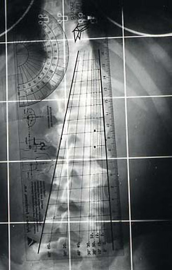 Fig. 18c.- Torsiómetro de Perdriolle para la medición de la rotación.