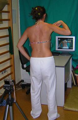 Fig. 27b.- Aprendizaje de la correcta postura ayudada por la cámara de vídeo. Nosotros utilizamos este sistema como complemento del método de Schroth.