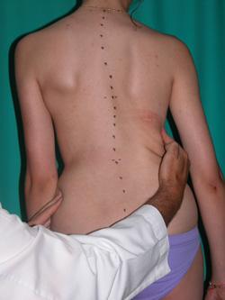 Fig. 28b.- También sirve de aprendizaje de mejora postural ayudado con las manos.