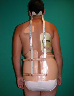 Fig. 34.- Corsé de Milwaukee en un púber de 15 años para tratar su escoliosis de 37 y 34º.