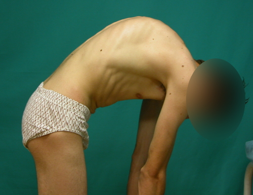 Fig. 13.- Hipercifosis dorsal e inversión de la curva lumbar (actitud cifótica lumbar) en sedentación que dan un morfotipo de CIFOSIS TOTAL.
