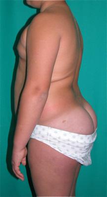 Fig. 13a.- Escolar de 11 años con hiperlordosis lumbar y anteversión de la pelvis.