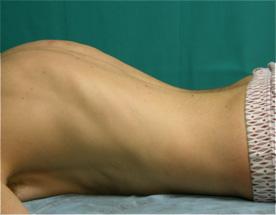 Fig. 16b.- Adolescente en el que persiste su hiperlordosis en decúbito prono, lo que indica estructuración.