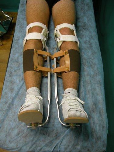 Figura MI 10. Púber con Tibias varas en tratamiento con ortesis nocturnas.