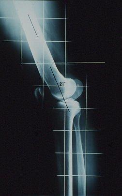 Figura MI 16.- Rx lateral en máxima extensión de la rodilla.