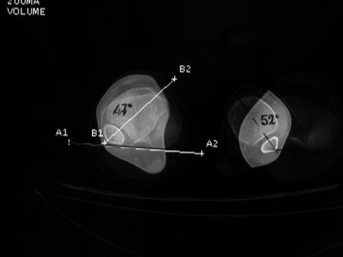 Figura MT 5b. TAC con TTE (Externa) derecha de 47º y la izquierda de 52º en una niña de 11 años.