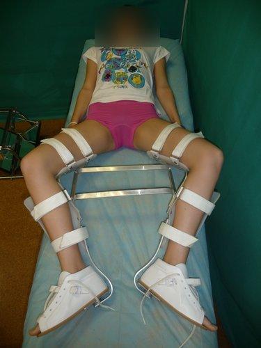 Figura MT 6. Férula D-F para tratamiento de articulación femoral en una púber de 12 años.