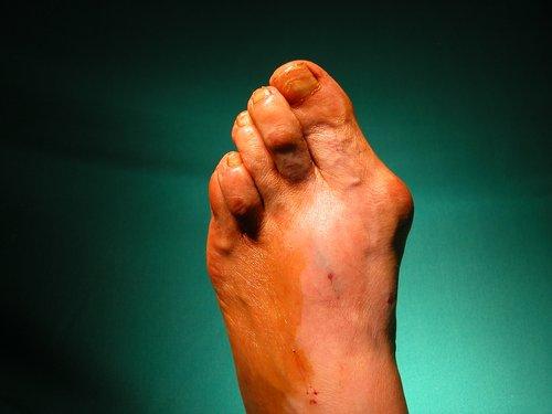 Preparación del pie en quirófano.