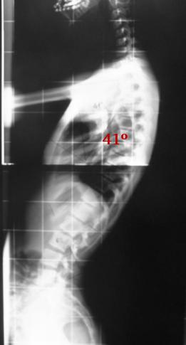 Fig. 32.- Rx L del raquis completo en bipe-destación. Existe una cifosis dorsal de 41º y una lordosis  lumbar de 62º (ambas en el límite de la normalidad).   Es muy frecuente que estas radiografías se realicen con los brazos elevados y el cuerpo retrasado,  lo que disminuye el grado de cifosis, impidiendo diagnosticar muchas cifosis.