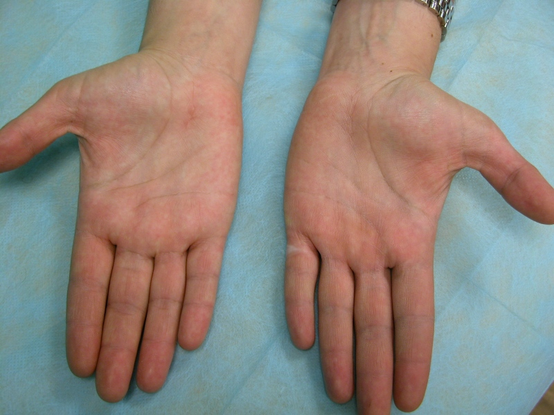 Figura 2.- Mínima cicatriz en una mujer operada de ambos Túnel del Carpo